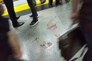 مردی در اشنویه خانواده همسرش را گلوله باران کرد / مصدومان به ارومیه و نقده اعزام شدند
